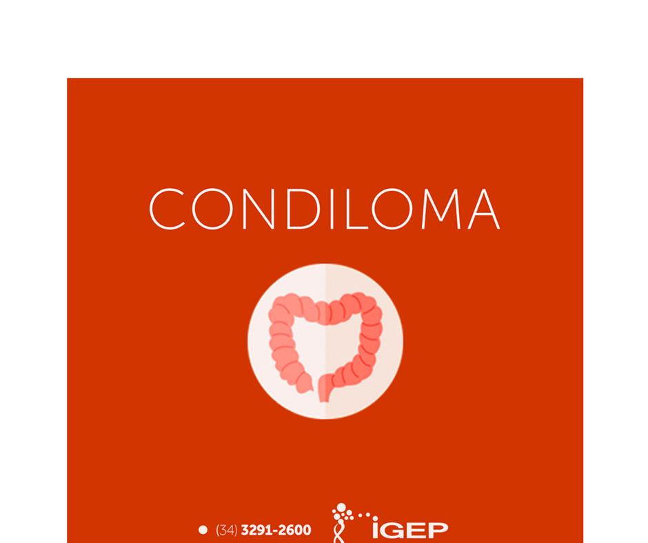 Condiloma tem ligação com câncer na região anal